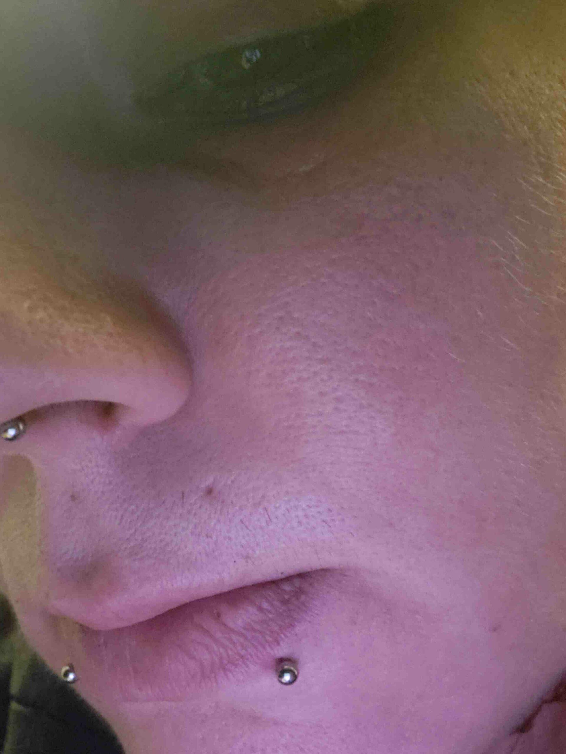 Comment éliminer une cicatrice causée par un piercing au nombril