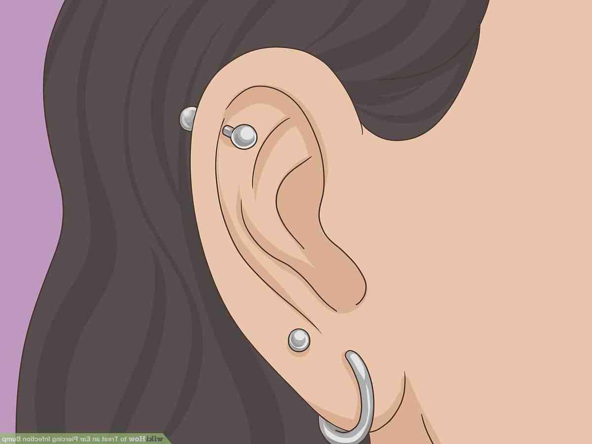 Comment enlever l'infection d'un piercing ?