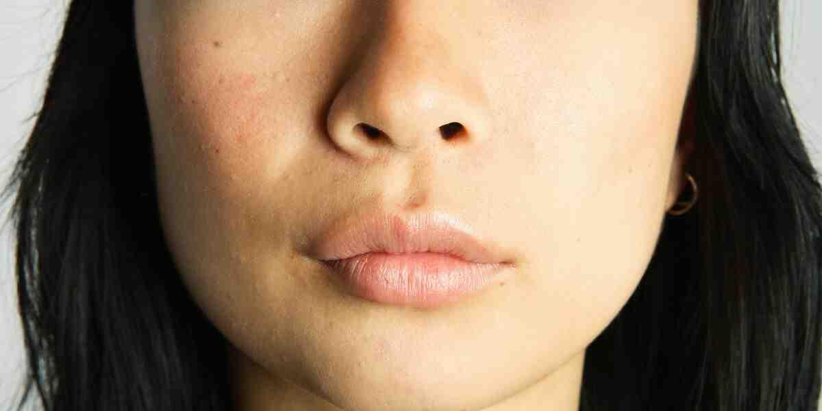 Comment enlever une infection du nez ?