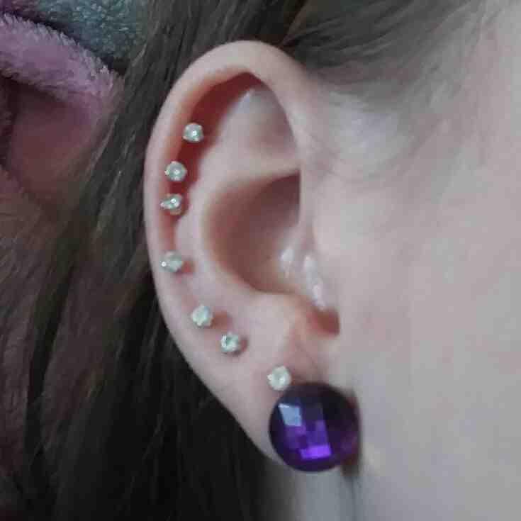 Comment savoir si le cartilage de l'oreille est cassé ?