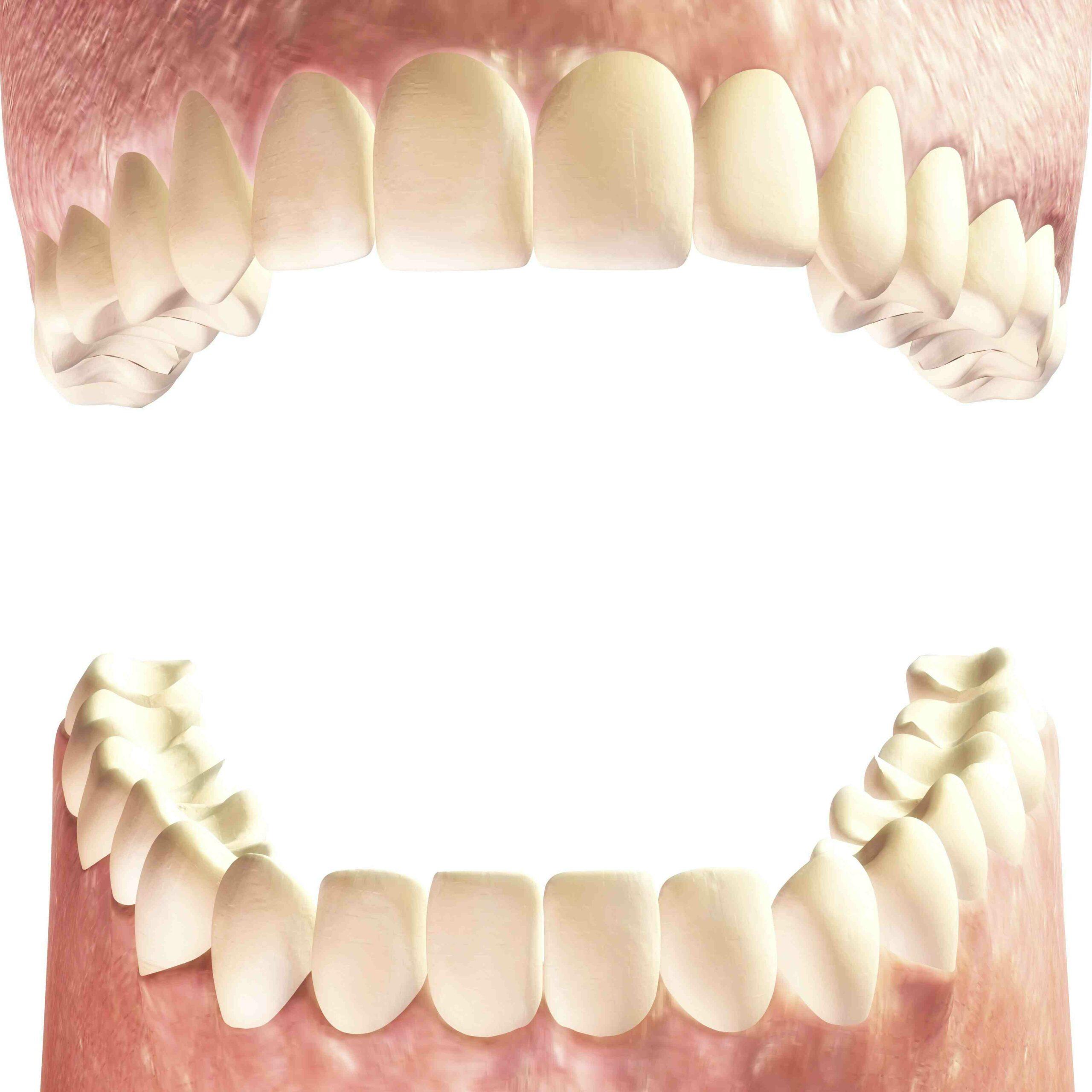 Comment se brosser les dents avec un piercing sur la langue