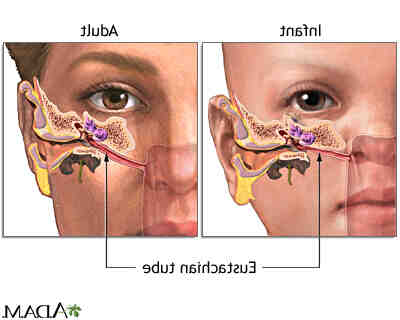 Comment soigner une oreille infecter ?